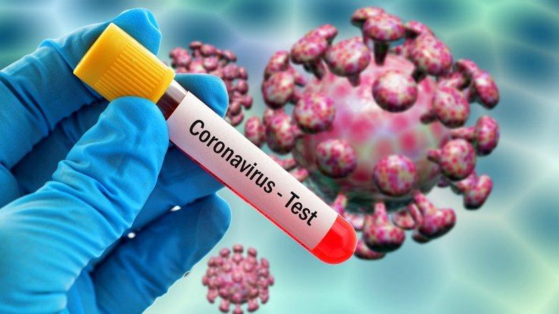 Slider-Gürcüstanda yeni növ koronavirusa yoluxma hallarının sayı artdı